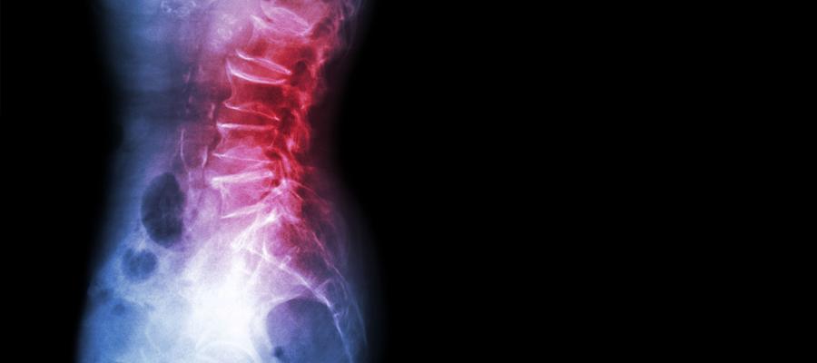 Reumatologia - Actua Girona